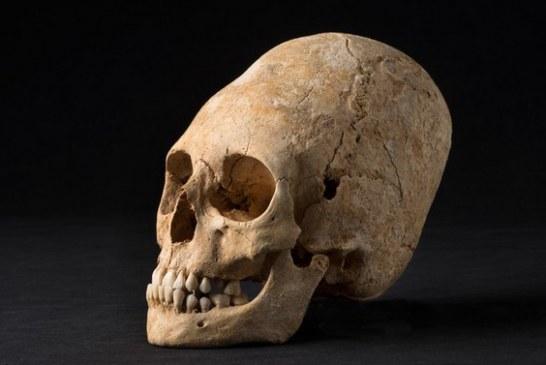 NEOBIČAN OBLIK GLAVE: Iskopana lobanja bogatašice iz 'mračnog doba'